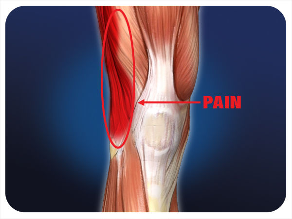 Home Remedy For Knee Pain After Running